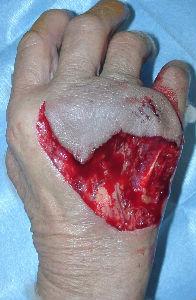 Cefazolin Dog Bite
